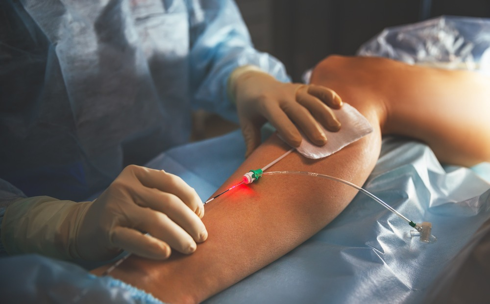 How To Choose the Right Procedure for Varicose Vein Treatment |