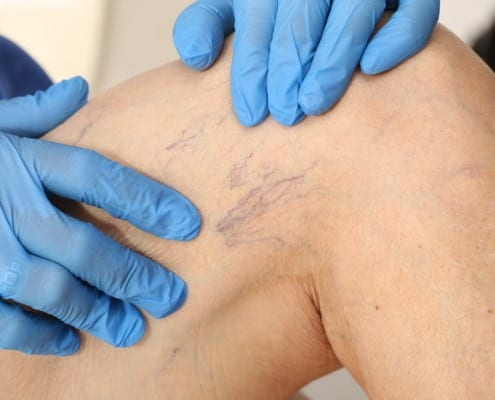 Why Sclerotherapy is a Great Way to Treat Spider Veins