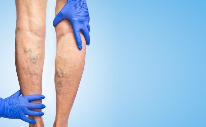 vascular leg exam when suspect of venous insufficiency