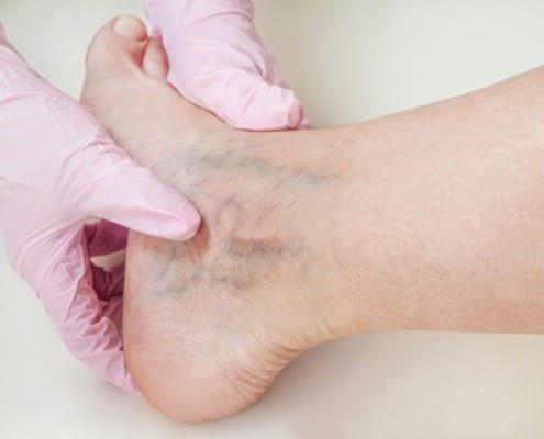 Best Ways to Treat a Vein Disease