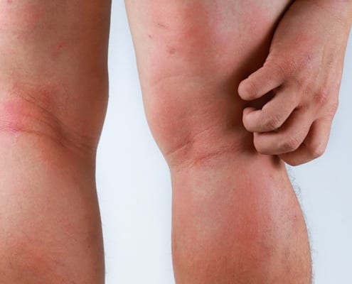 Skin conditions and treatment options